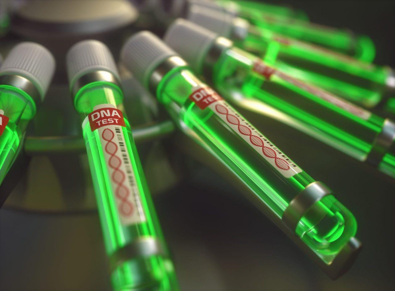 dna-genetic-test-PEHMWAW-scaled-1280x945.jpg